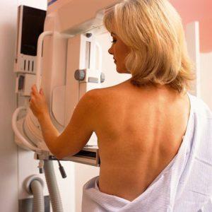 Margulies mammogram image